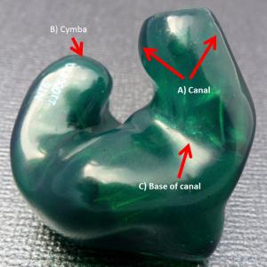 Custom In-Ear Monitor (CIEM) Fit Issues